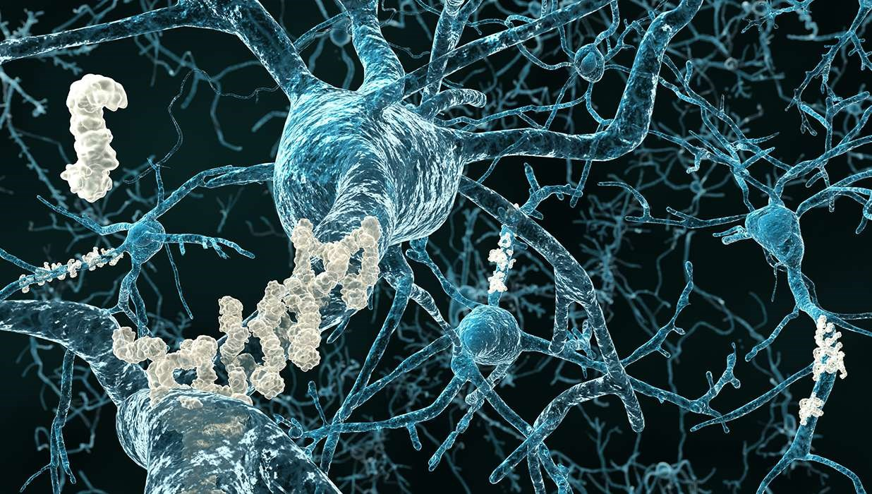 Link Identified Between Alzheimer's Disease and Fungus