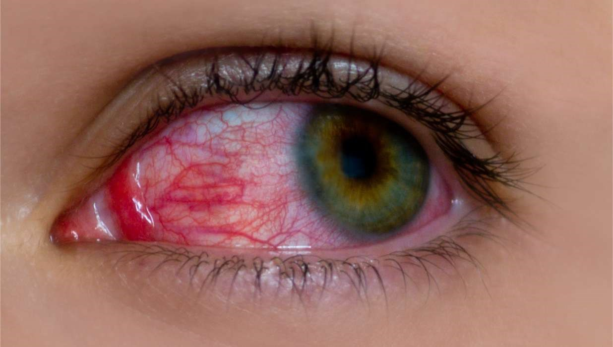 New Findings Show Chronic High Blood Pressure Increases Risk of Glaucoma