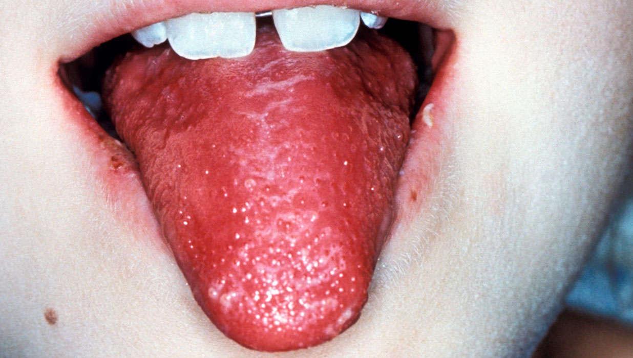 Eating paper disease