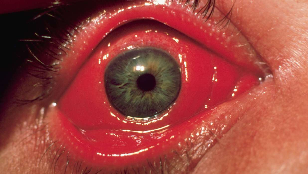 Lyme Disease: Ocular Signs