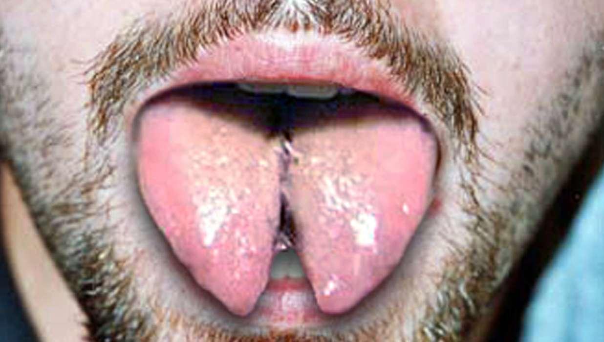 tongue-splitting.jpg