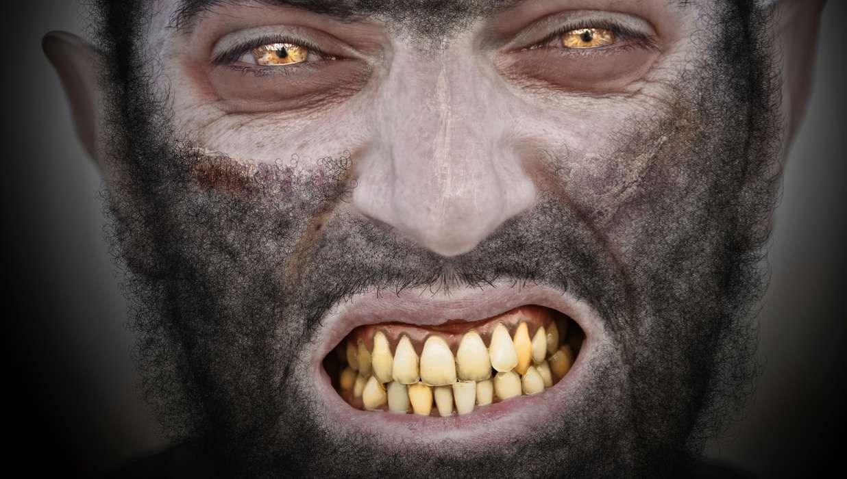 Werewolf Syndrome (Congenital Hypertrichosis Lanuginosa)