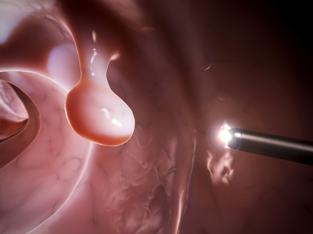 Routine Colonoscopy Performed After Age 75 Show Little to No Benefit, Study Finds