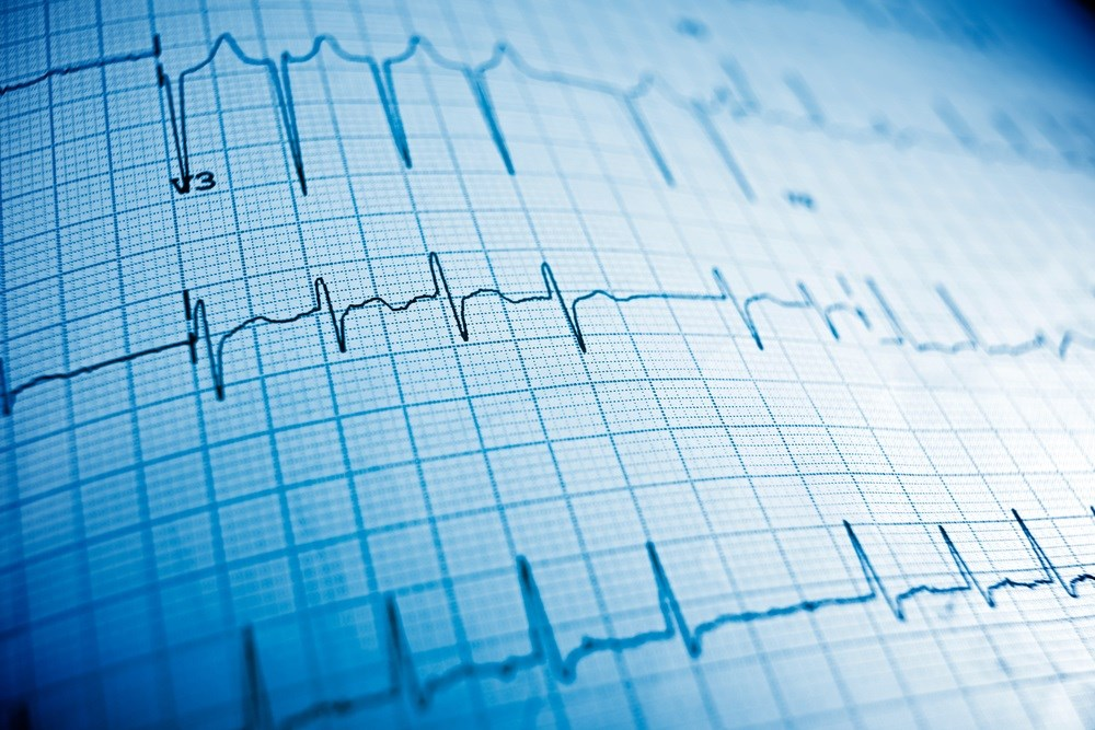 New Method Developed to Identify QT Interval-Prolonging Drug-Drug Interactions