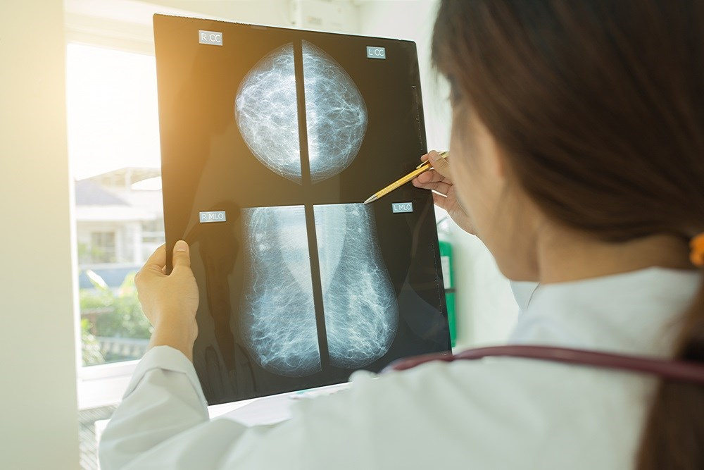 Substantial Overdiagnosis Found with Mammogram Use