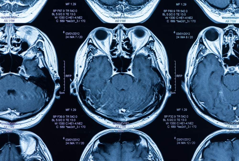 Using MRIs To Assess Suicide Risk in Young Bipolar Patients