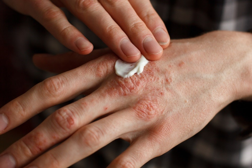 Significant Economic Burden Caused by Skin Diseases