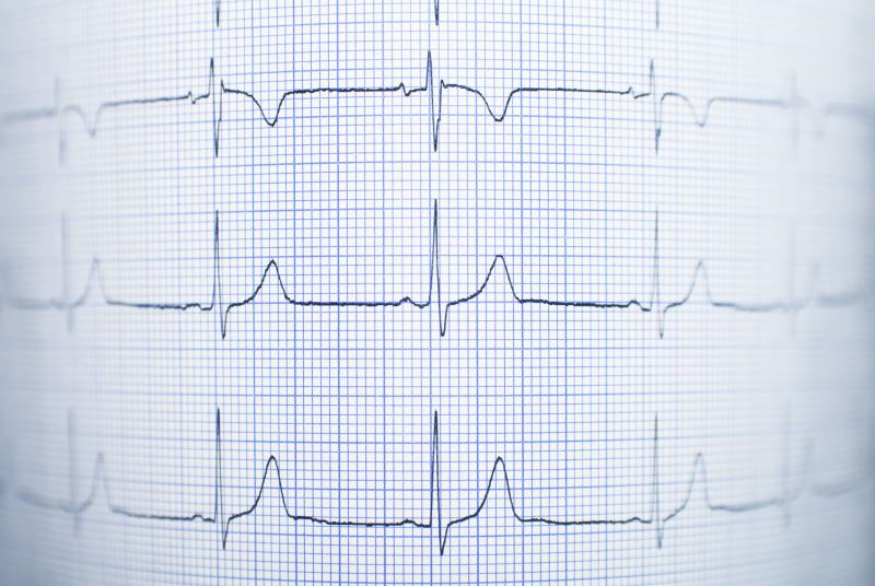 For the Fit, Sudden Cardiac Arrest Risk is Low During Workouts
