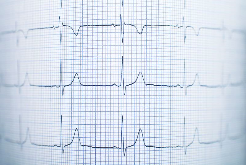 Updated Guidelines Released for Management of Ventricular Arrhythmia, Sudden Cardiac Death