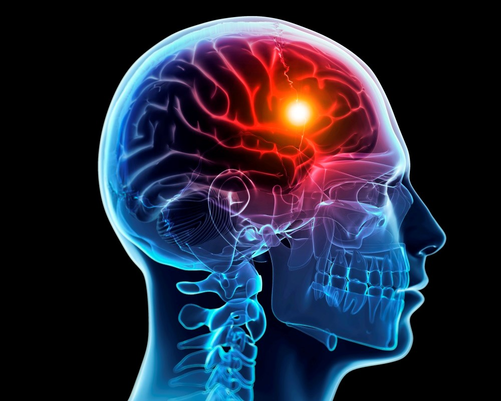 Exploring the Long-Term Effects of Head Injuries on Mental Health