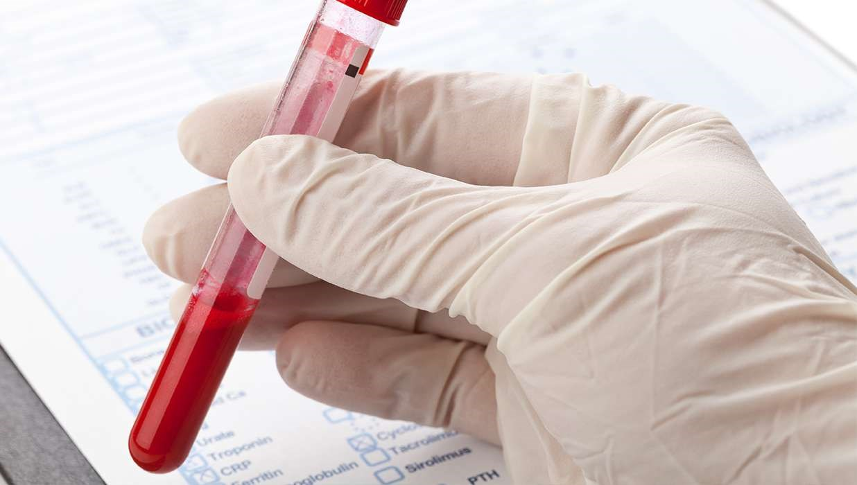New Blood Test for Colon Cancer Improves Colonoscopy Screening Results