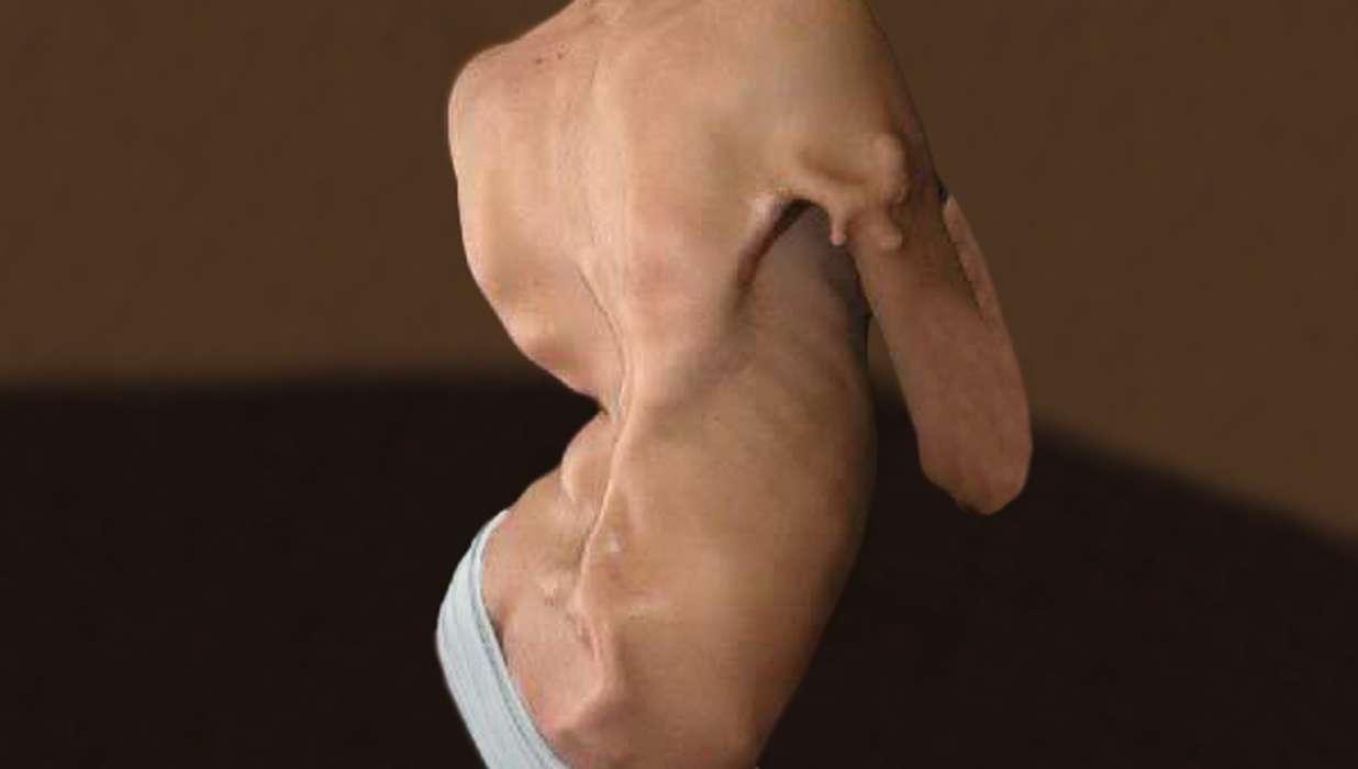 fibrodysplasia ossificans progressiva essay