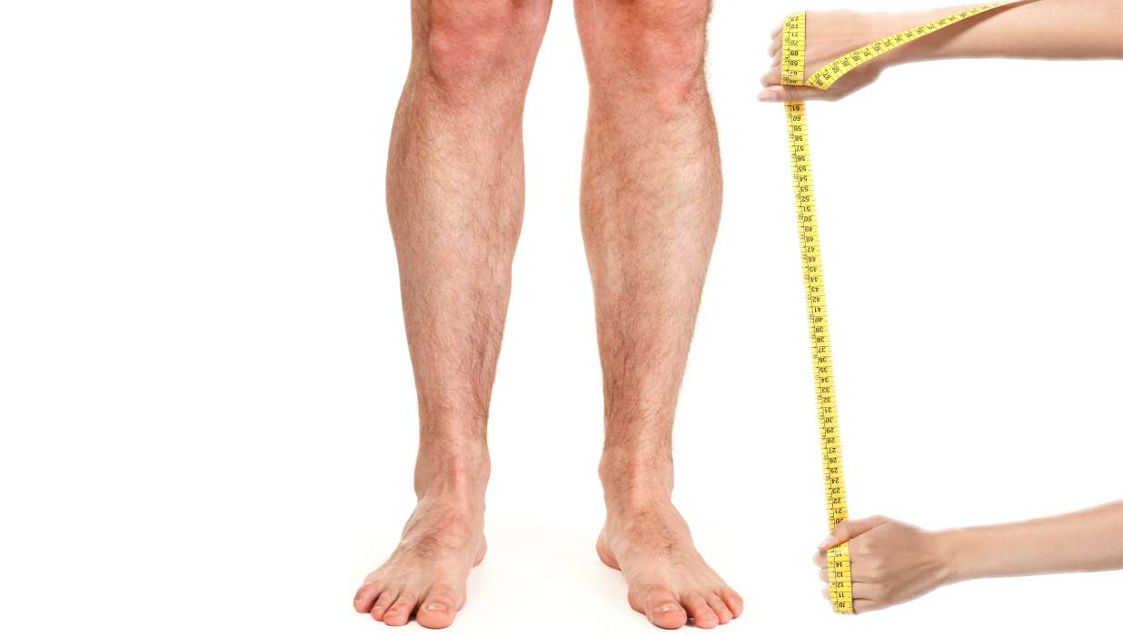 leg lengthening surgery mostly attracts you guessed it short men