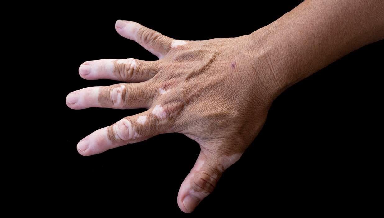 Michael Jackson's Skin Condition