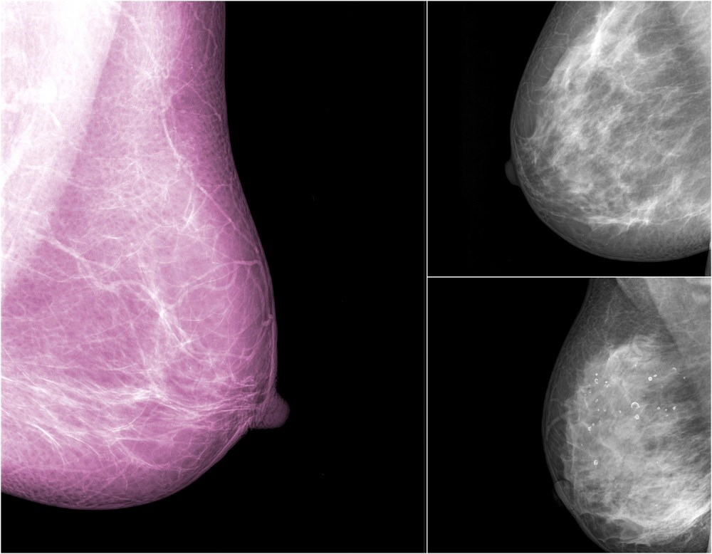 Skilled Radiologists Proven To Detect Breast Cancer In Less Than One Second