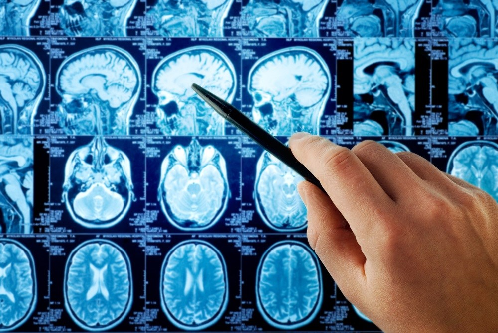 Limited Benefit from Whole Brain Radiotherapy for Patients With Metastasis to Brain