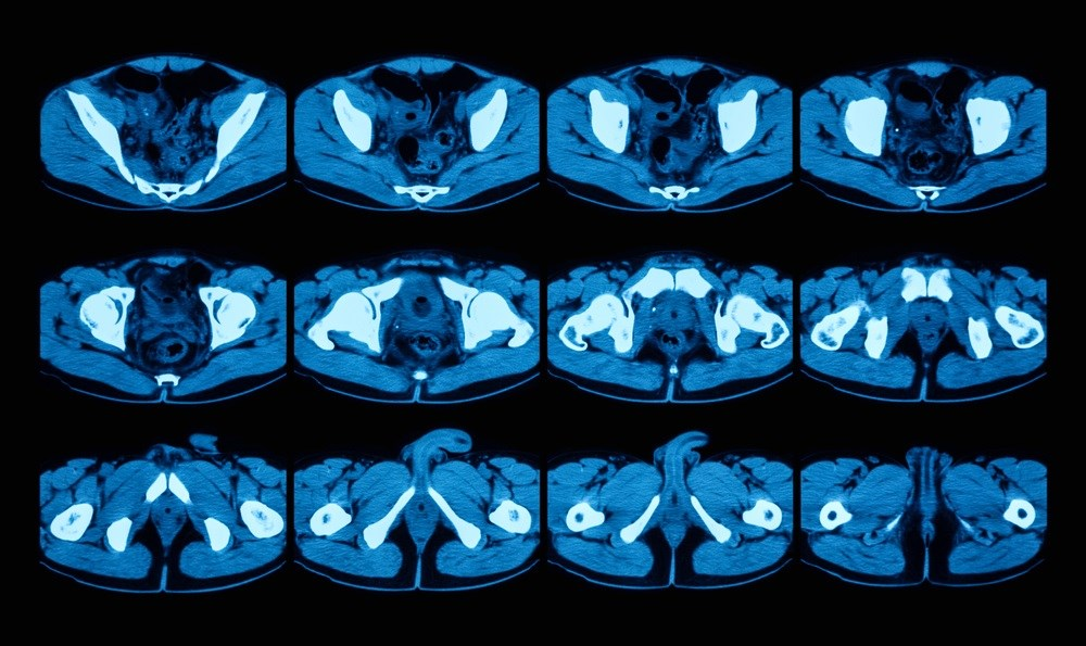 Routine CT Colonography May Be Useful in Detecting Abdominal Aortic Aneurysms