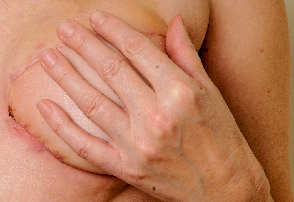 Contralateral Mastectomy Rates Rising Significantly Among Breast Cancer Patients
