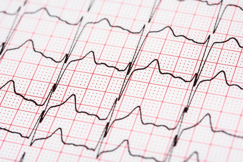 Rising Hospitalizations Seen for Atrial Fibrillation