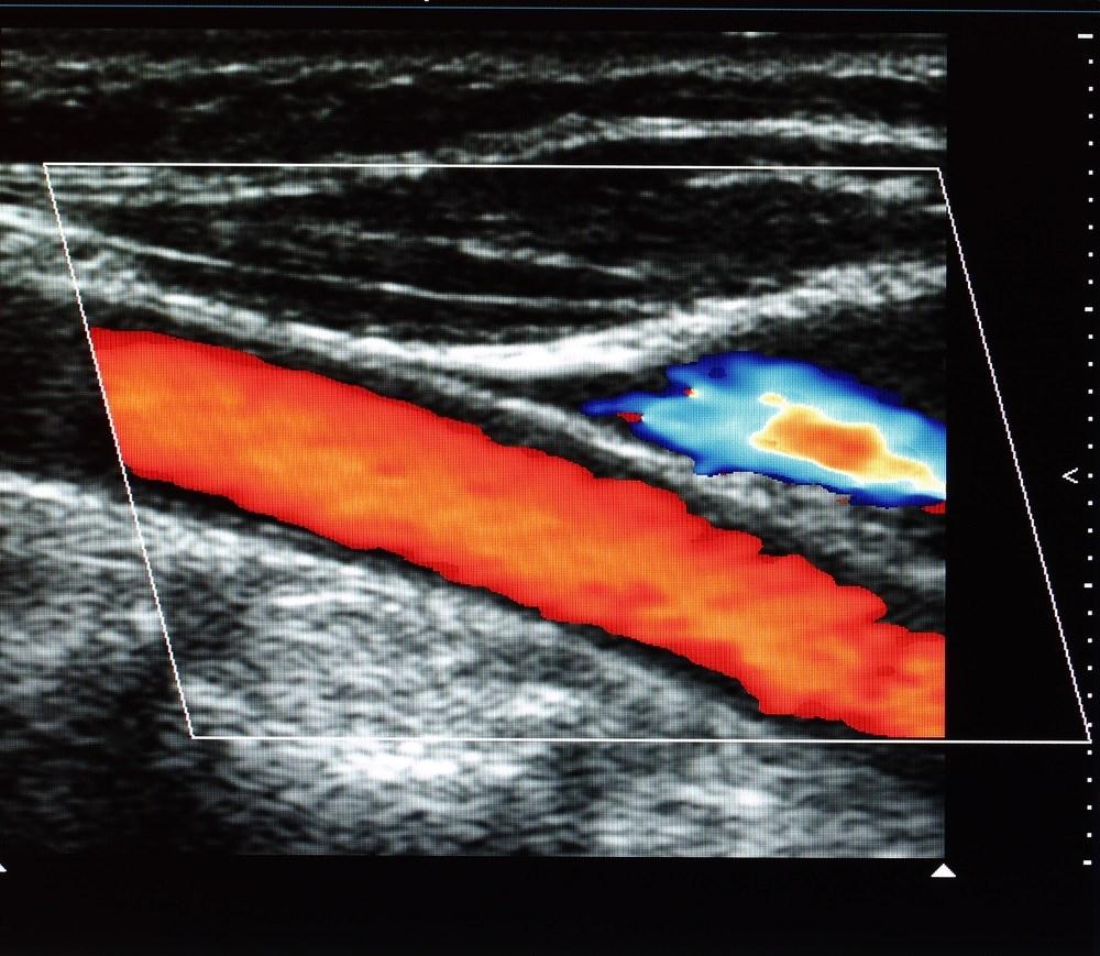 Health Care Setting Influences Treatment for Carotid Artery Stenosis