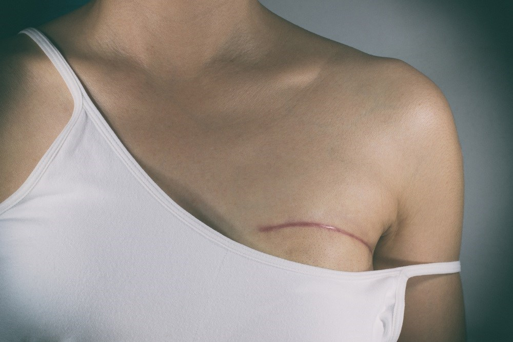 Nationwide Rates of Contralateral Prophylactic Mastectomy Increases