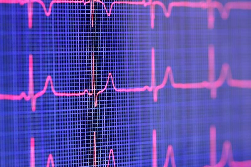Are Clinicians Too Reliant on Computerized Decision Support Systems?