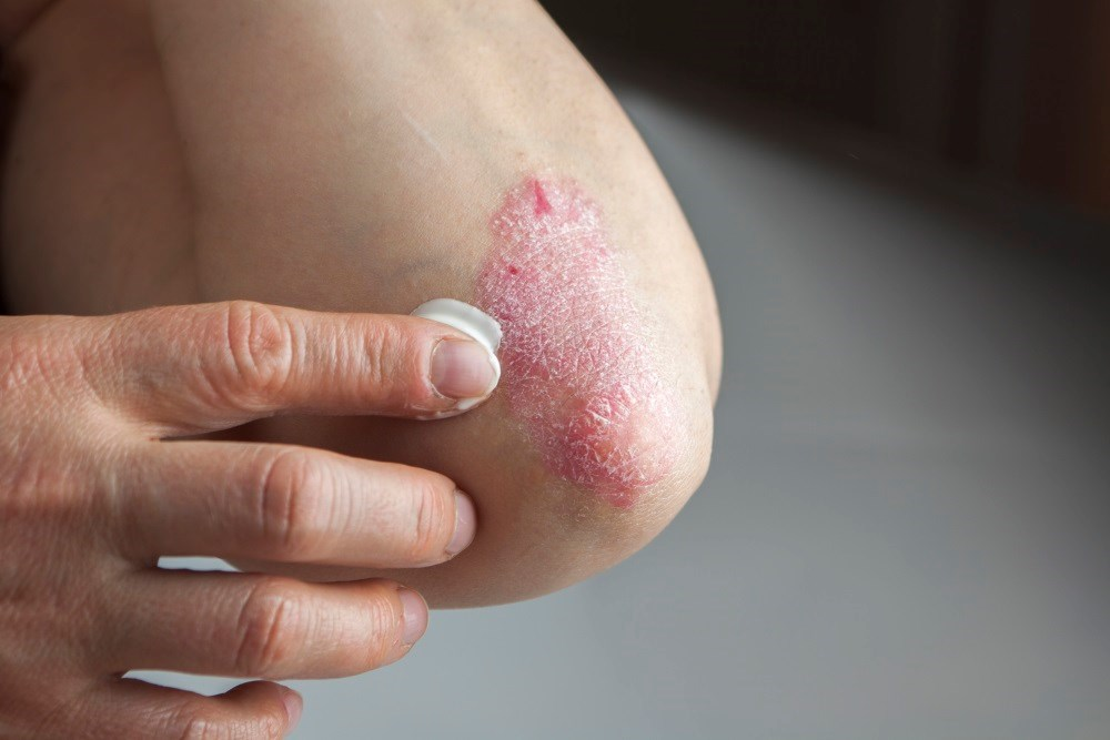 Phone App Linked to Improved Psoriasis Treatment Adherence
