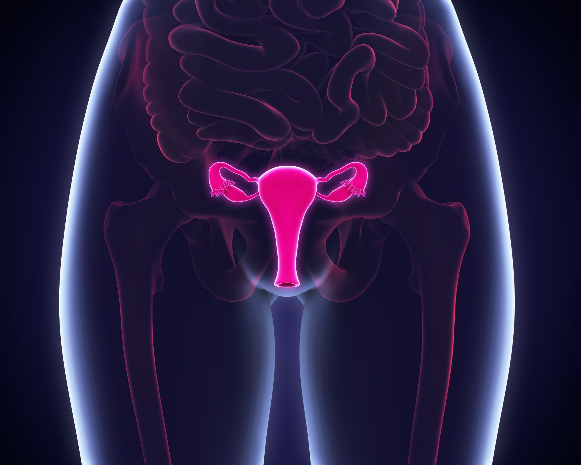 Absolute uterine factor infertility affects approximately 1.5 million women worldwide.