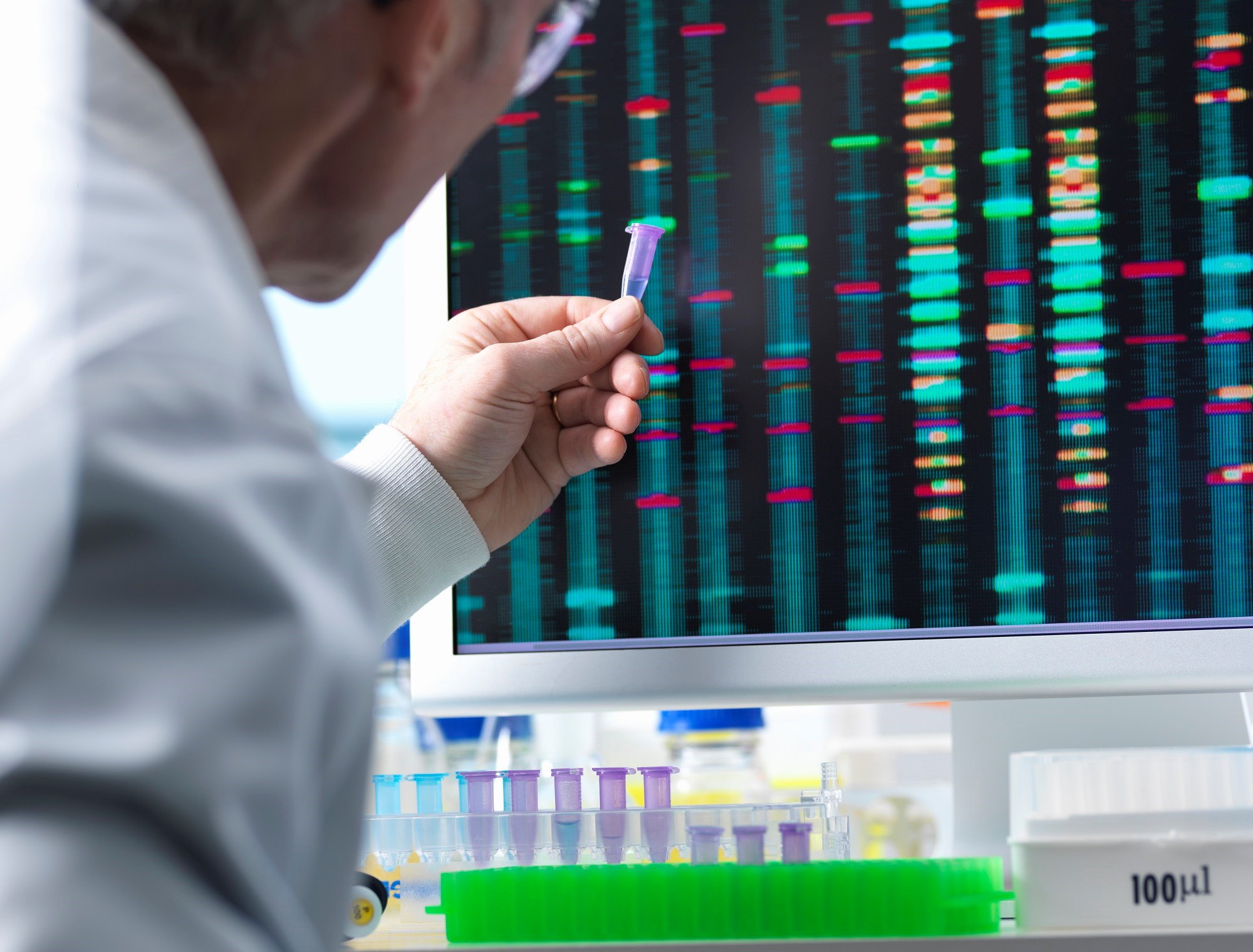 Genomic Sequencing Can Identify Disease Risk for Actionable, Early-Onset Conditions