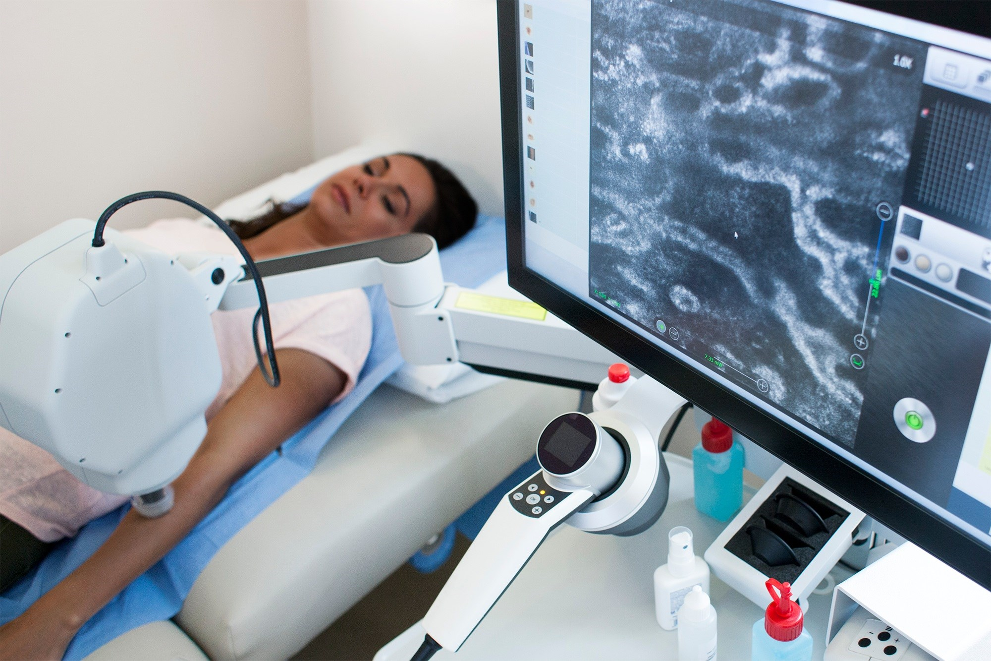 AI-Powered Cancer Diagnoses in Dermatology Leave Patients of Color in the Dust